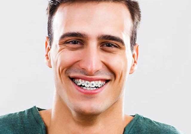 Dental Health – Important Tips
